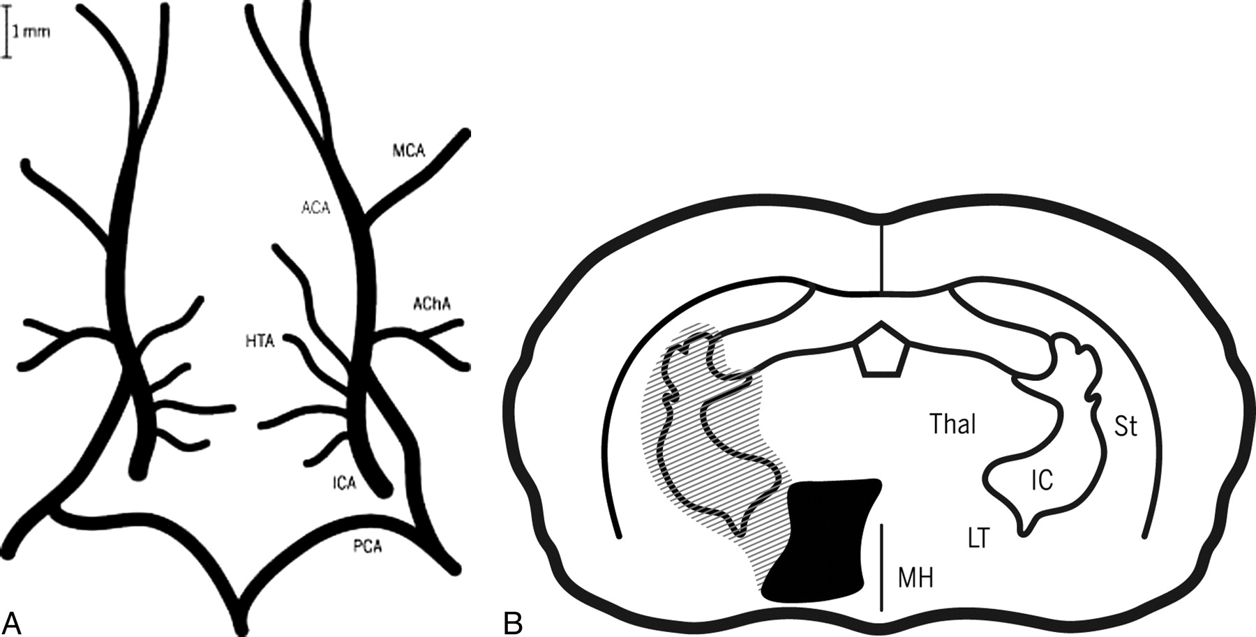 Novel Microcatheters for Selective Intra-Arterial Injection of Fluid ...