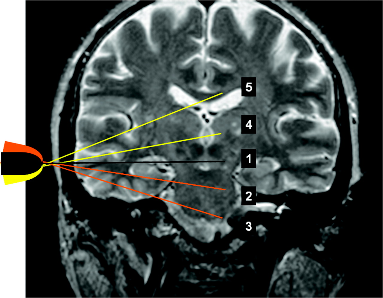 Transcranial Color-Coded Sonography Successfully Visualizes All ...