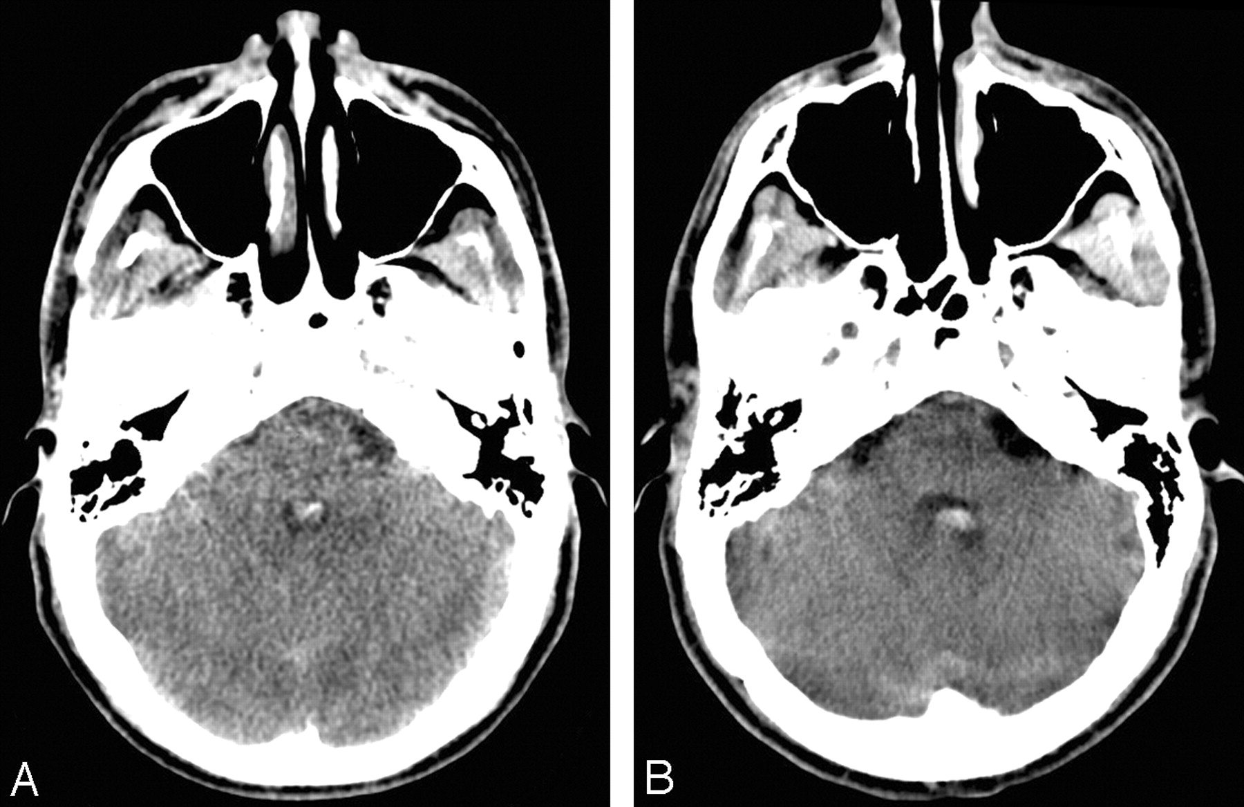 Review Of Portable Ct With Assessment Of A Dedicated Head Ct Scanner
