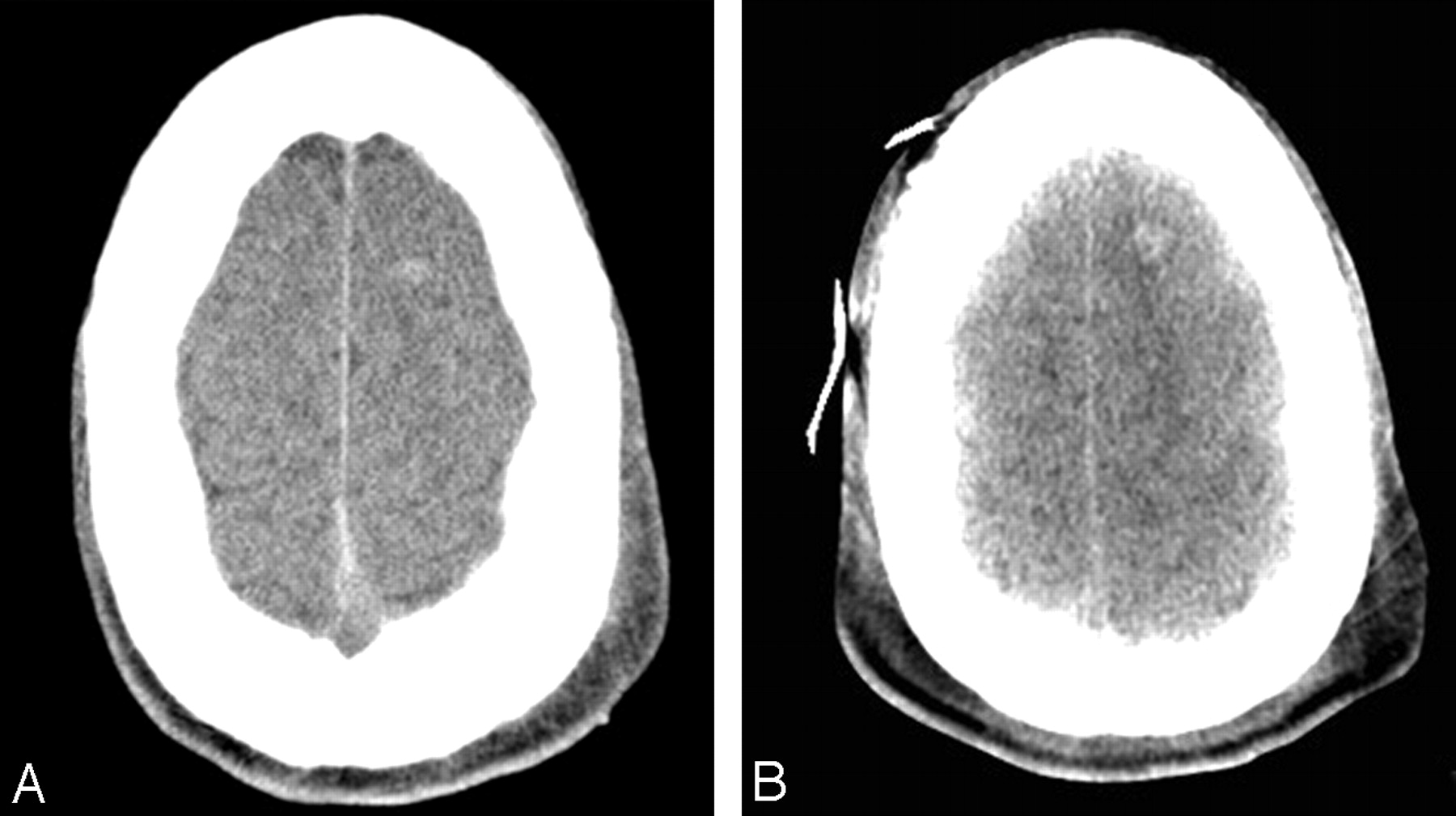 Review of Portable CT with Assessment of a Dedicated Head CT Scanner ...