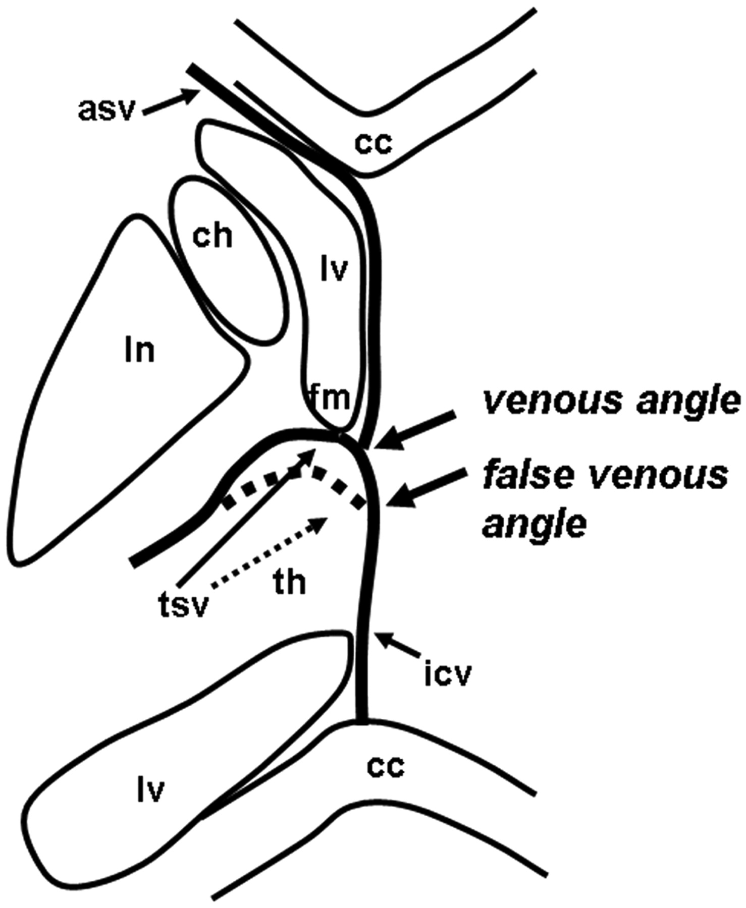 Demonstration Of Cerebral Venous Variations In The Region Of The