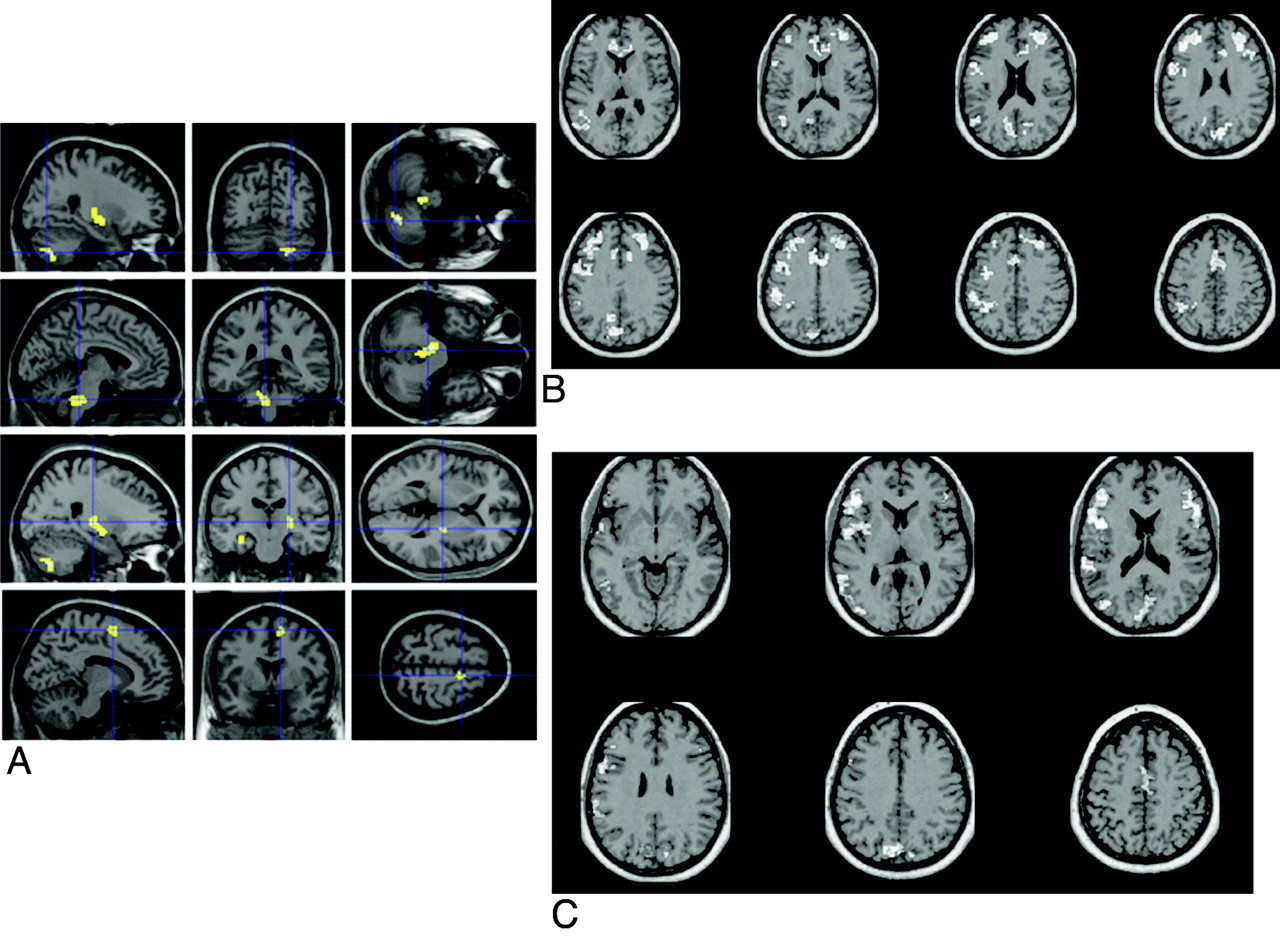 The Present and the Future of Neuroimaging in Amyotrophic