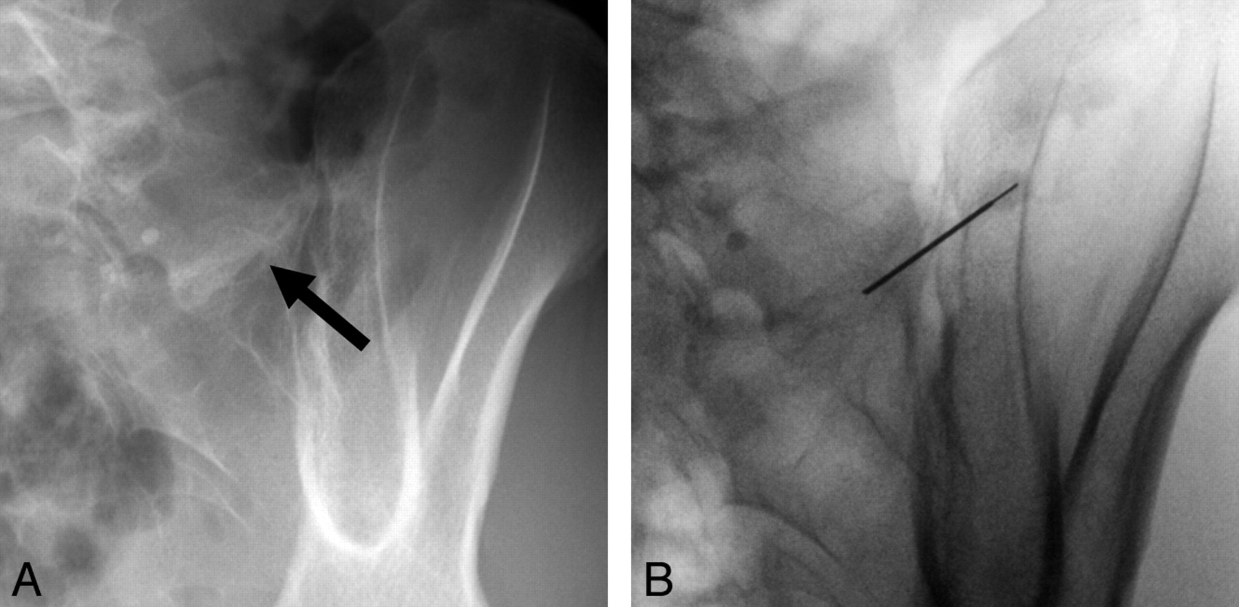 retrolisthesis laminectomy Post-laminectomy spondylolisthesis - a review of the posterior elements and their contribution to the stability of the lumbar spine.