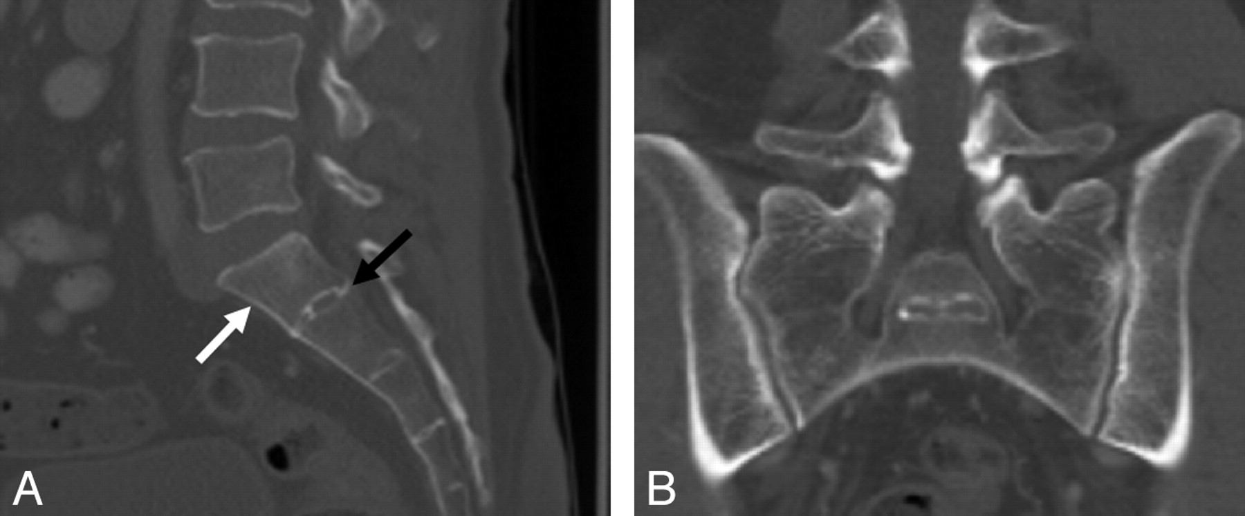 Lumbosacral Transitional Vertebrae Classification Imaging Findings