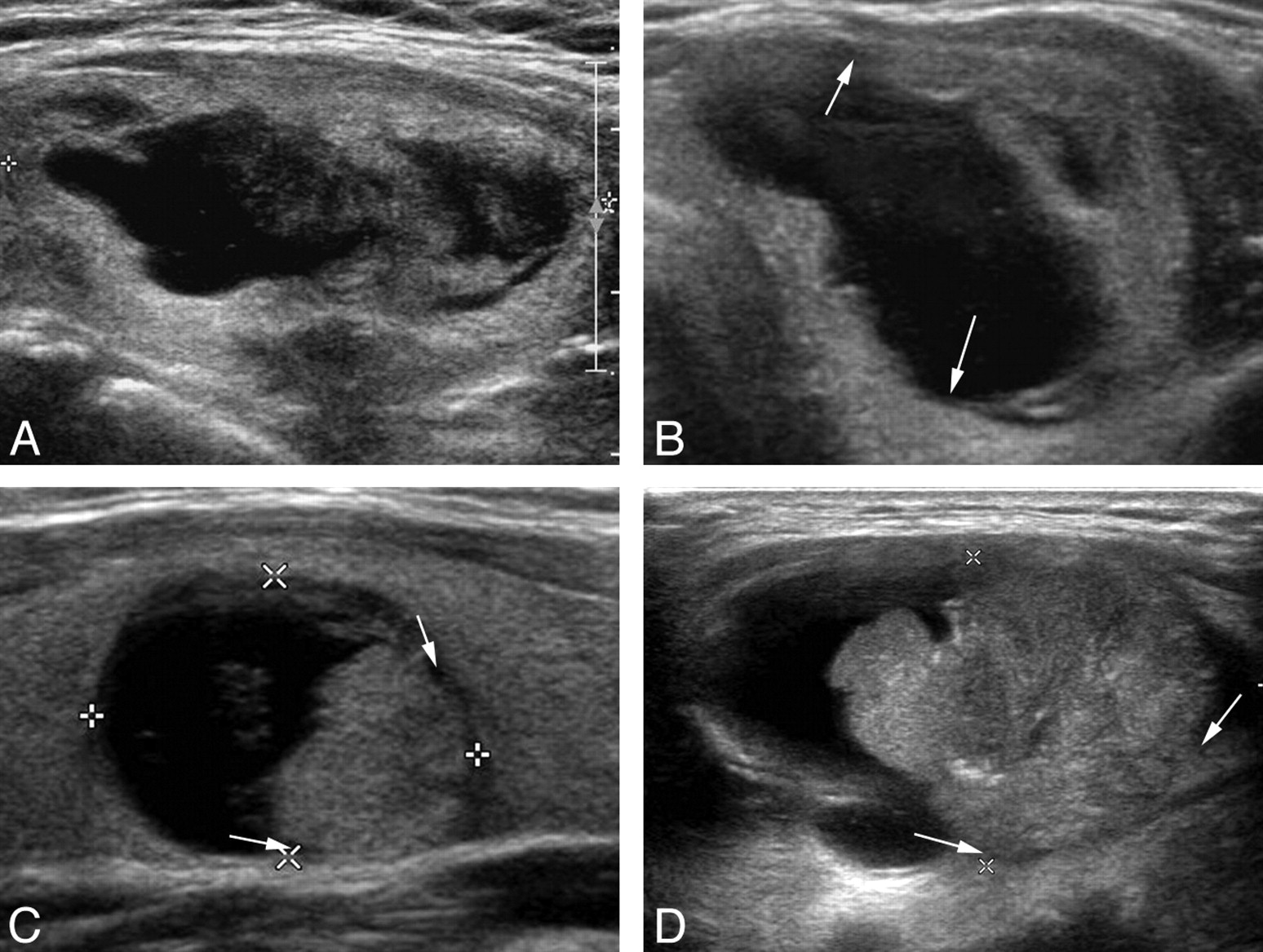Sonographic Differentiation Of Partially Cystic Thyroid Nodules A