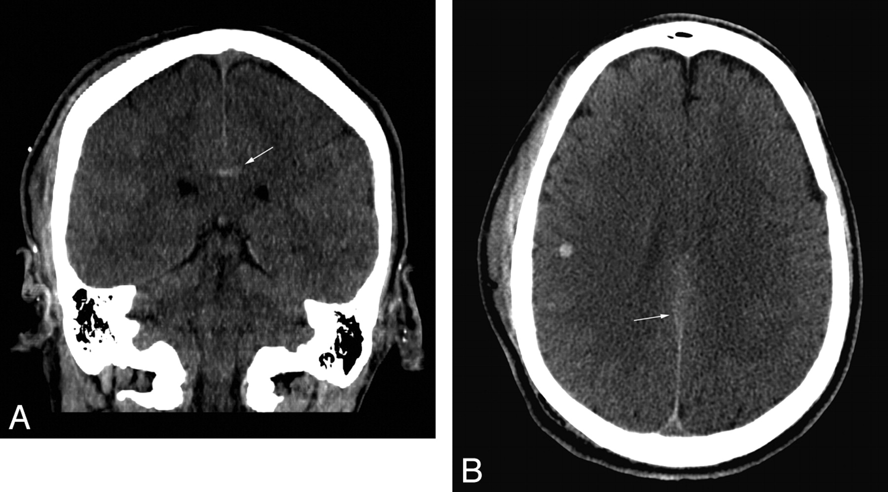 Value of Coronal Reformations in the CT Evaluation of Acute Head ...