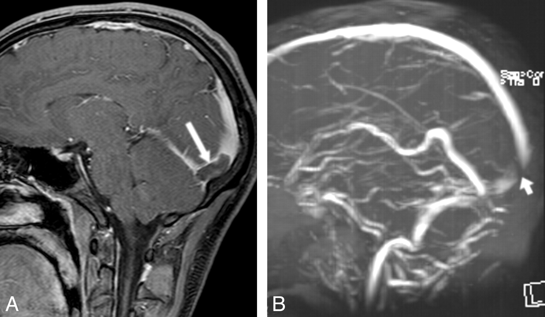 Cerebral Venous Thrombosis: Diagnostic Accuracy of Combined, Dynamic ...