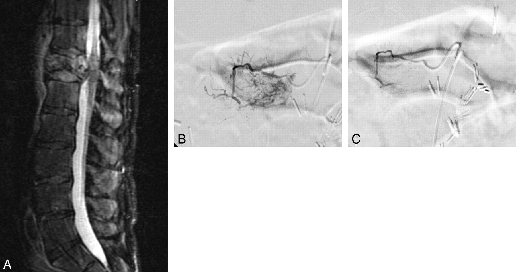 Retrospective Analysis of Preoperative Embolization of Spinal Tumors ...
