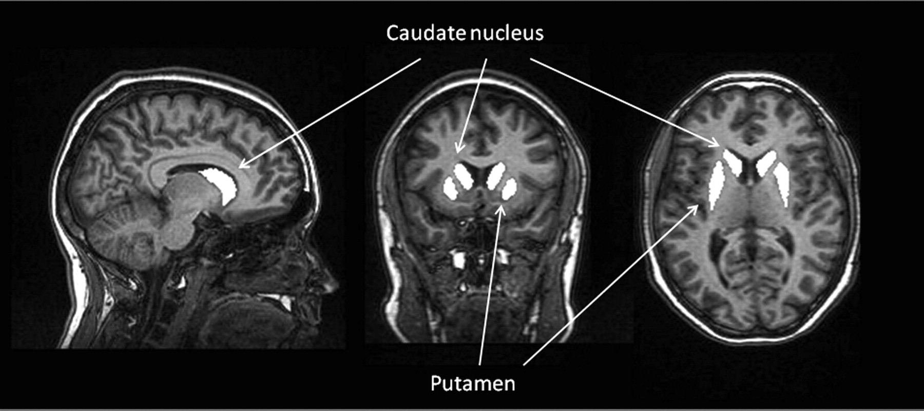 Decreased Diffusivity In The Caudate Nucleus Of Presymptomatic Huntington Disease Gene Carriers Which Explanation American Journal Of Neuroradiology