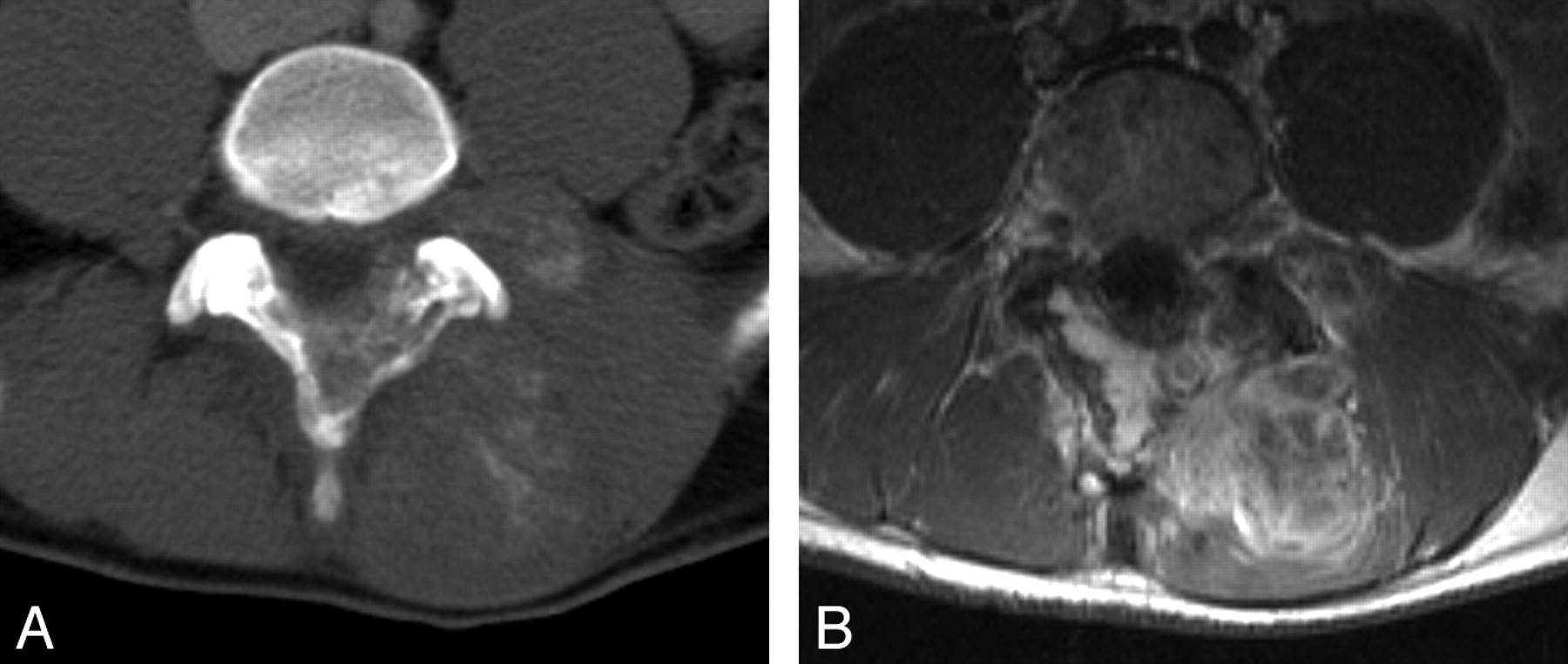 Imaging of Back Pain in Children | American Journal of Neuroradiology
