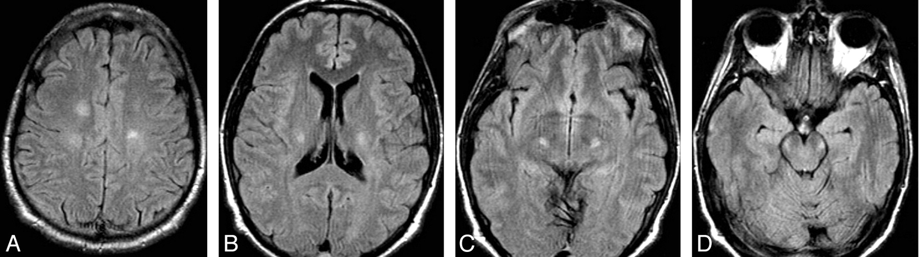 white matter lesions suggestive of amyotrophic lateral sclerosis