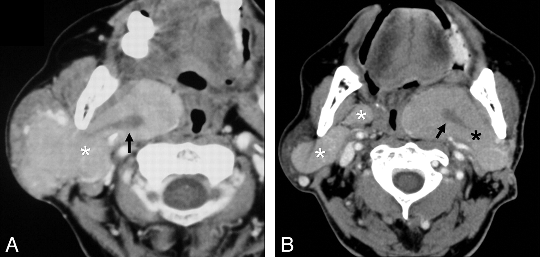ct features of parotid gland oncocytomas  a study of 10