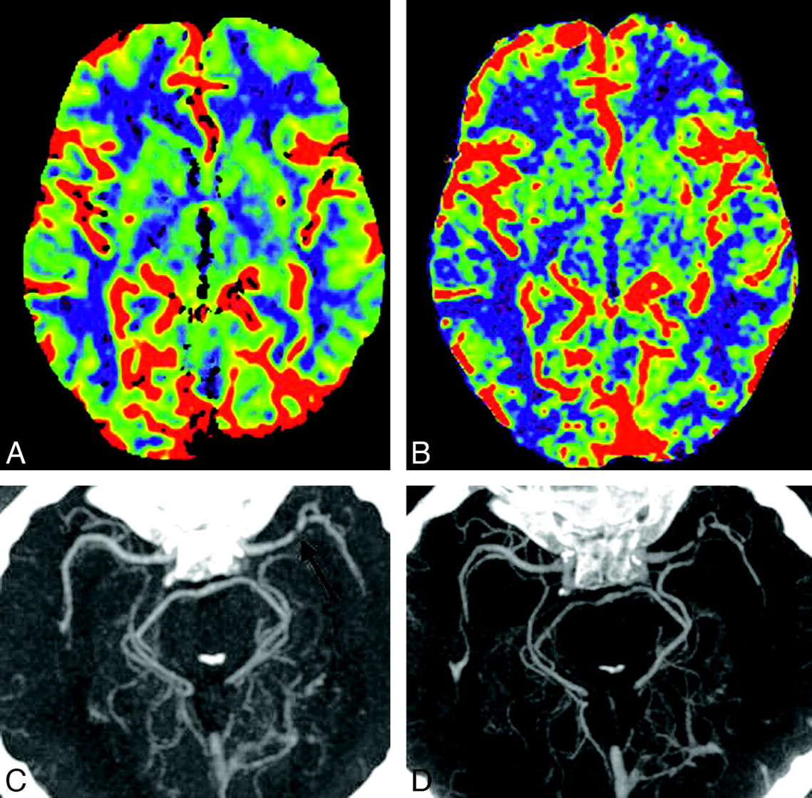 Flat Detector CT in the Evaluation of Brain Parenchyma, Intracranial ...