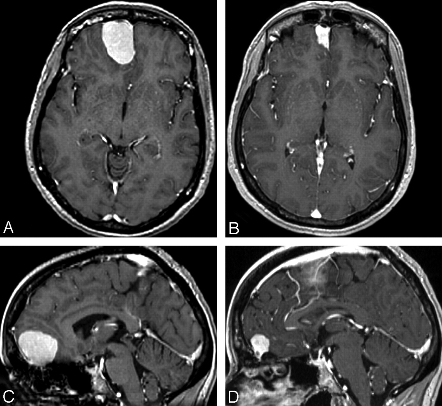 abrupt regression of a meningioma after discontinuation of