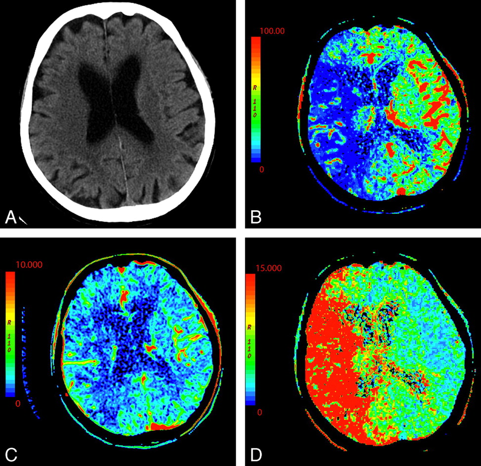 Cerebral Perfusion CT: Technique and Clinical Applications ...