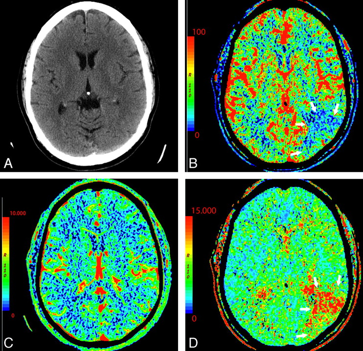CT perfusion in acute stroke - PubMed Central (PMC)