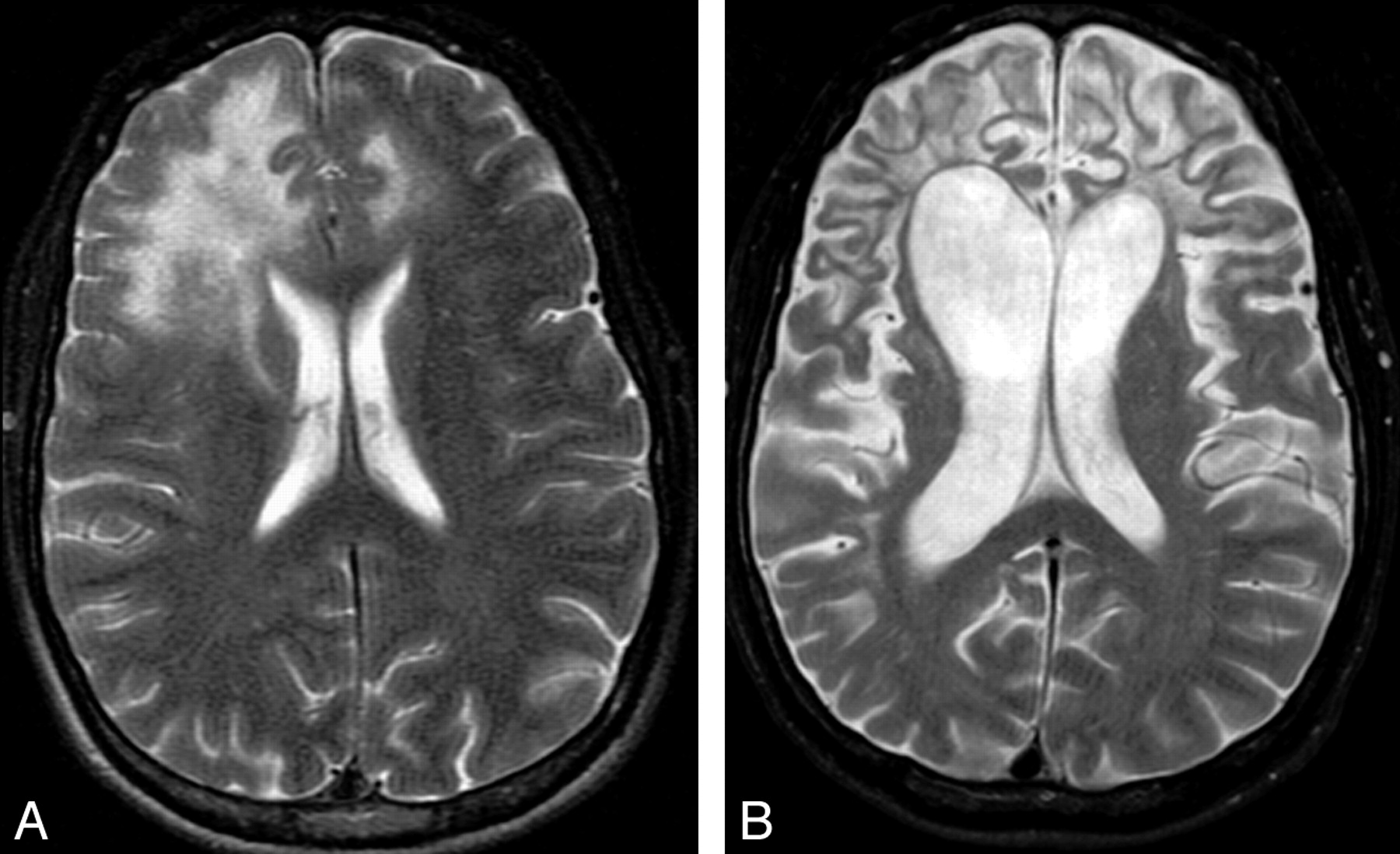 jc virus infection of the brain | american journal of neuroradiology, Skeleton
