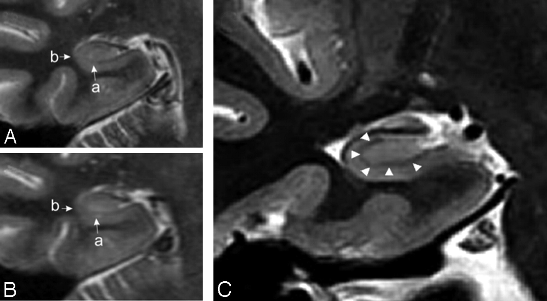 Histologically Confirmed Hippocampal Structural Features Revealed By