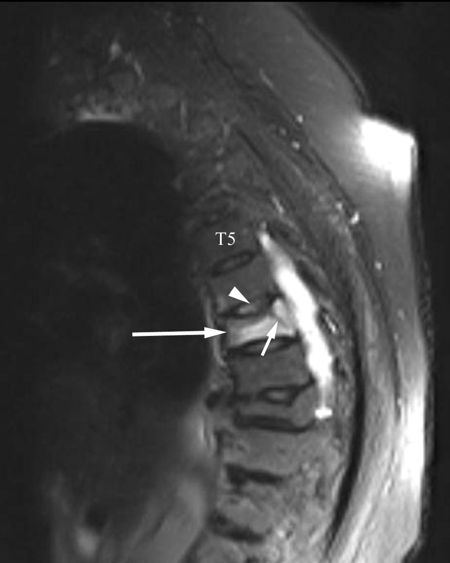Injury To The Vertebral Endplate Disk Complex Associated With