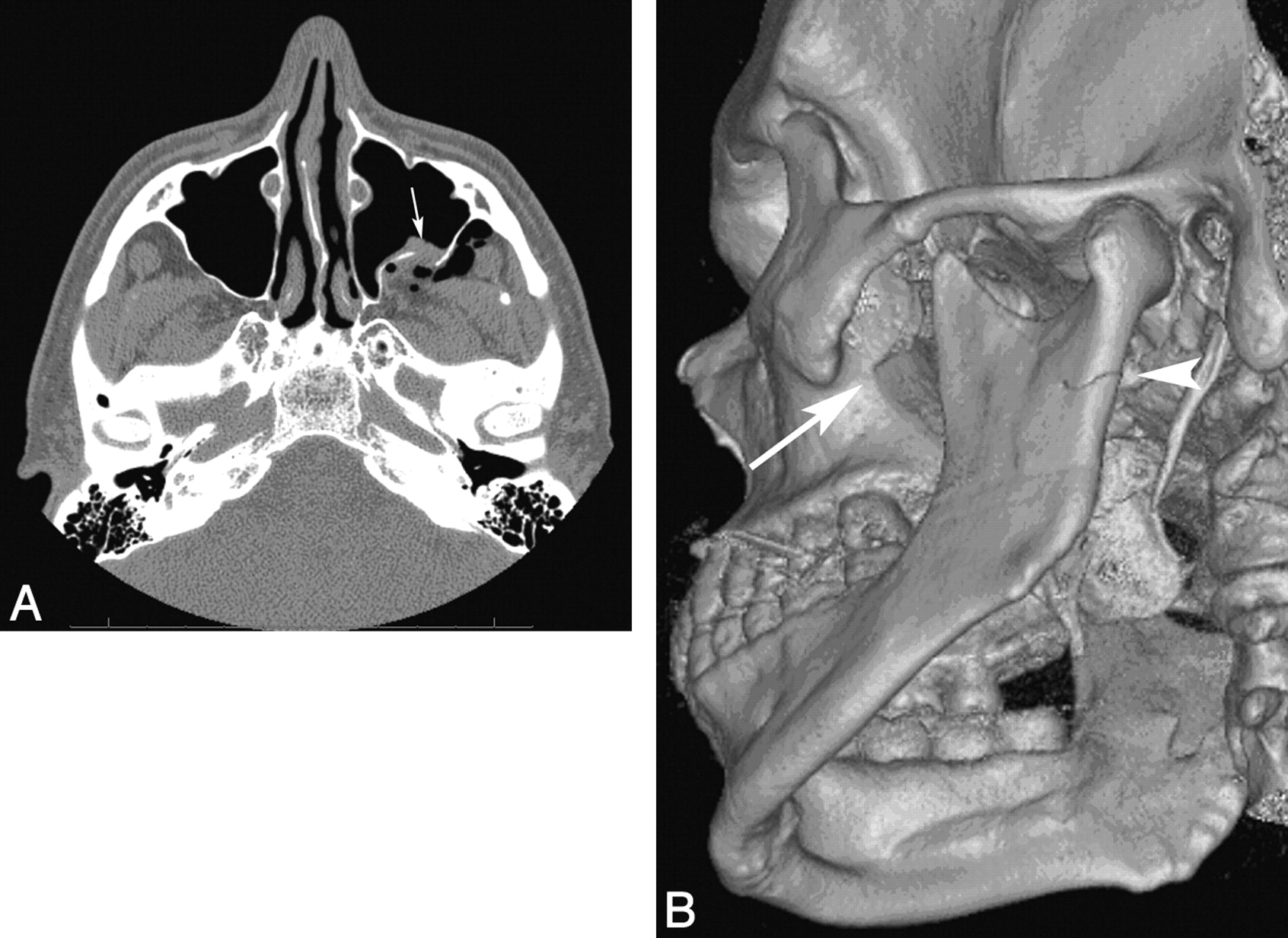 Isolated Fractures of the Posterior Maxillary Sinus: CT Appearance ...