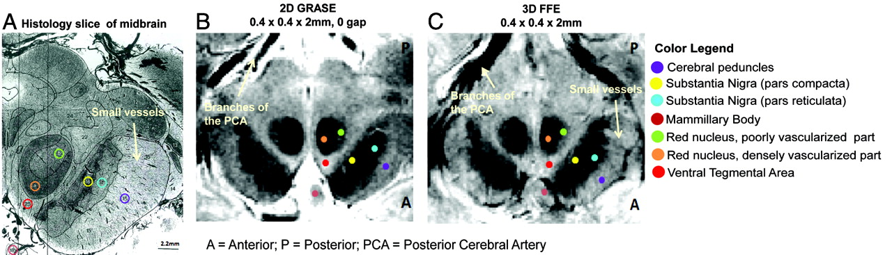Using High-Resolution MR Imaging at 7T to Evaluate the Anatomy of ...