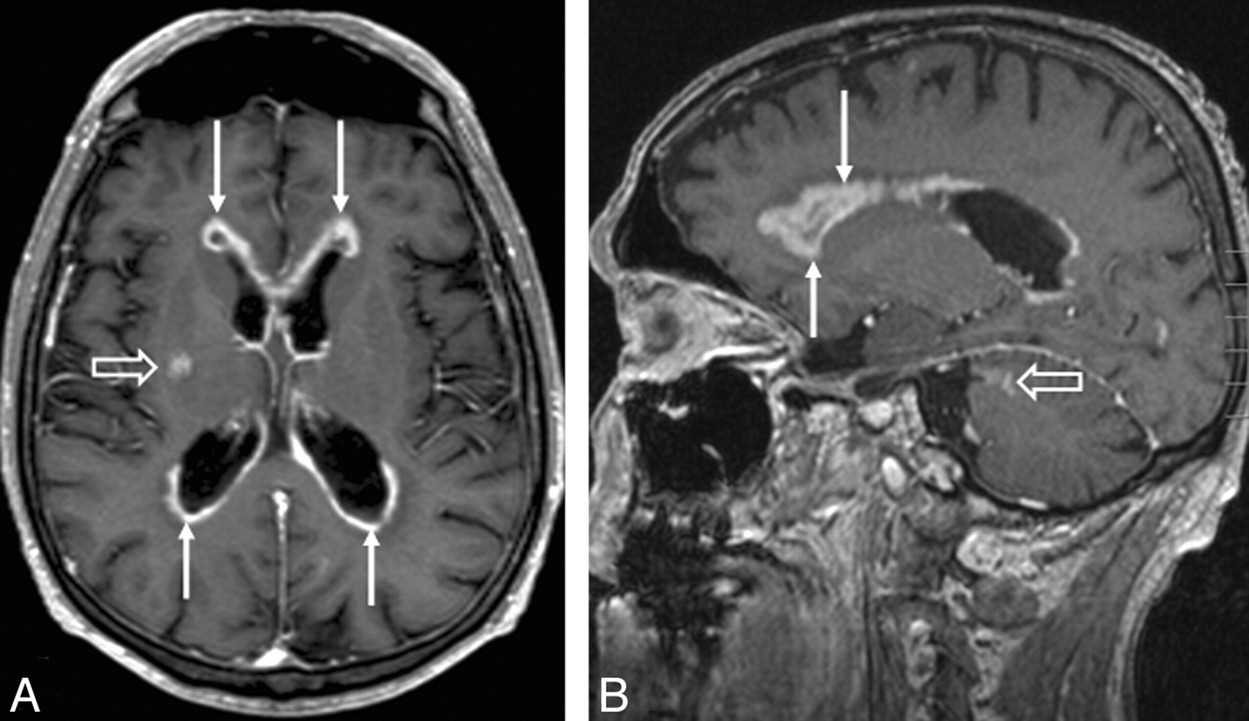 central nervous system lymphoma characteristic findings on