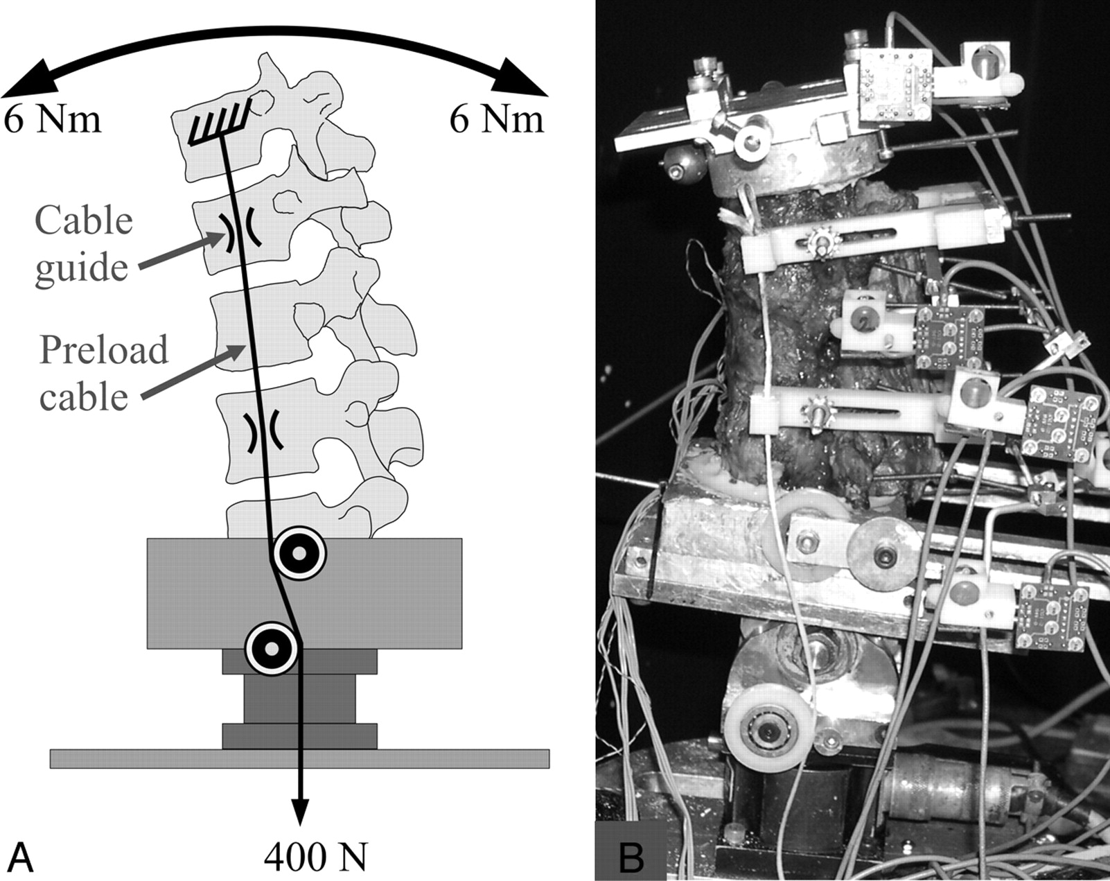 Restoration Of Spinal Alignment And Disk Mechanics Following 2000 Rm 250 Engine Diagram Download Figure