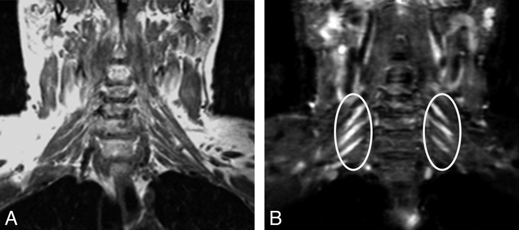 High-Resolution MR Neurography of Diffuse Peripheral Nerve