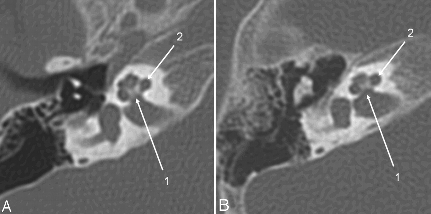 Low-Dose Temporal Bone CT in Infants and Young Children: Effective ...