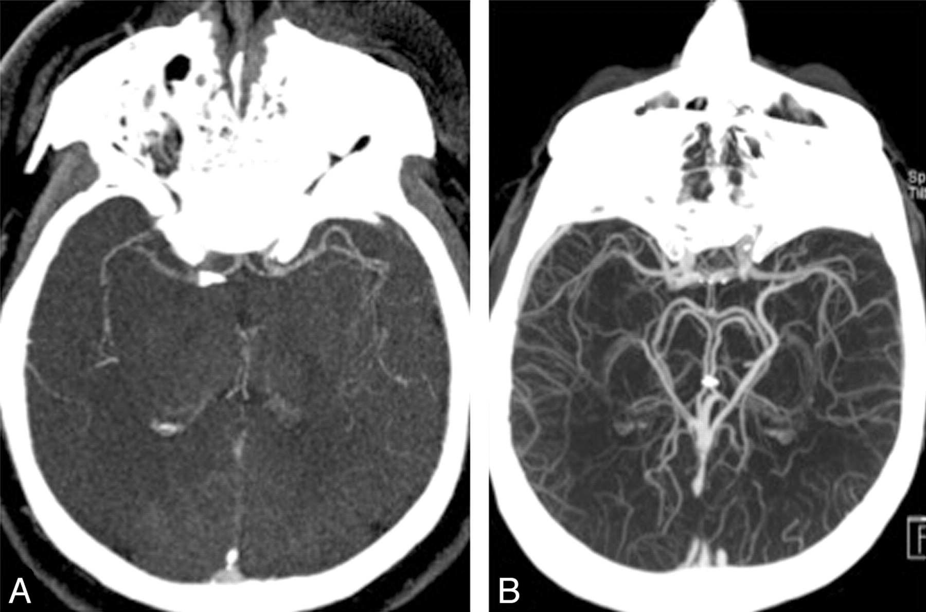 Regional Leptomeningeal Score on CT Angiography Predicts Clinical ...