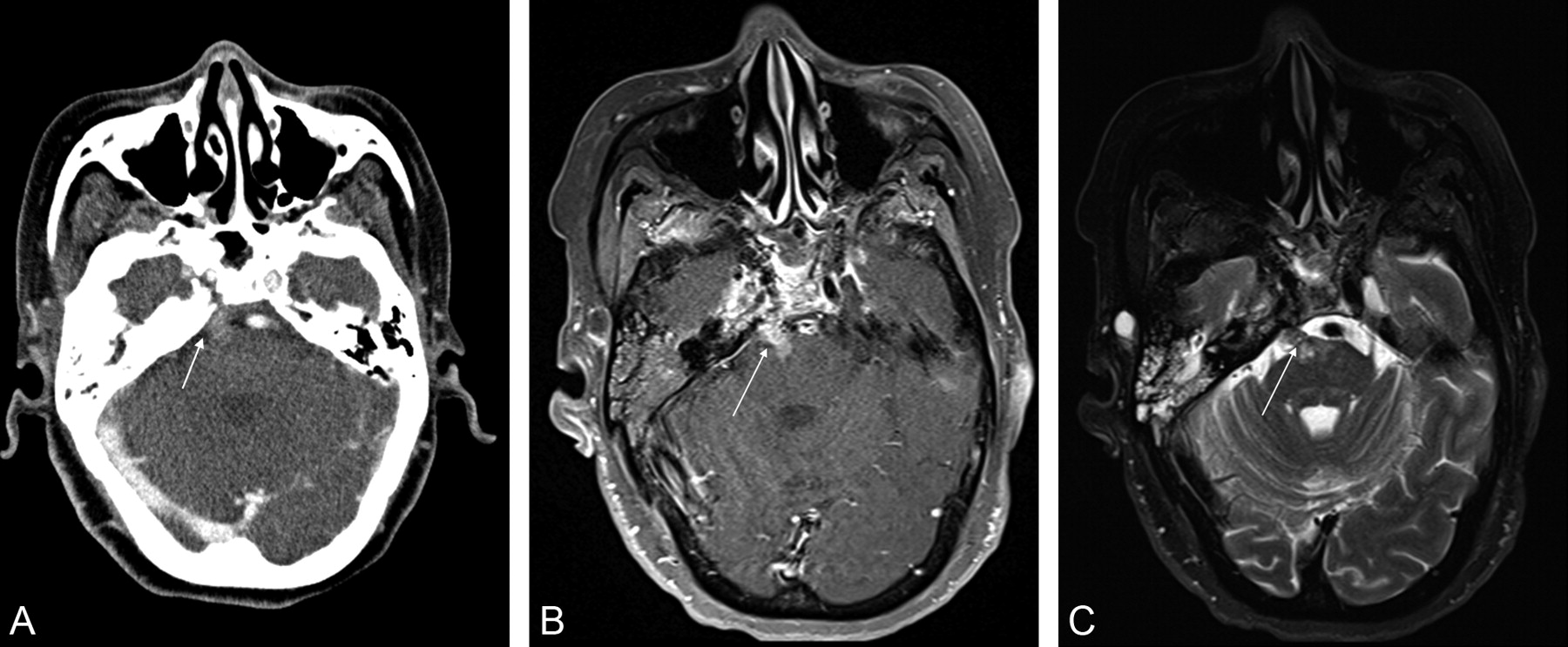 Perineural Tumor Spread along the Sixth Cranial Nerve: CT and MR ...