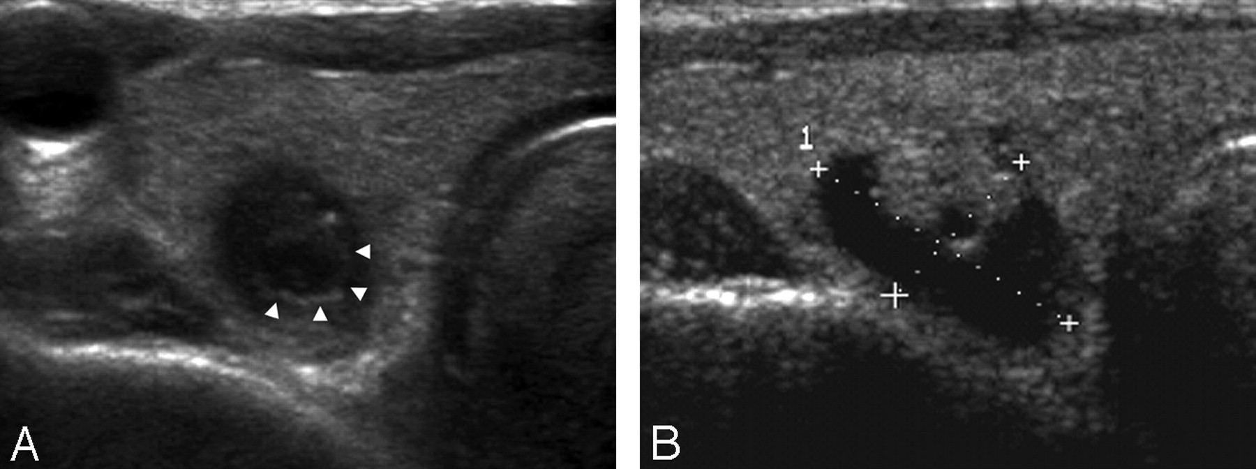 Collapsing Benign Cystic Nodules Of The Thyroid Gland Sonographic