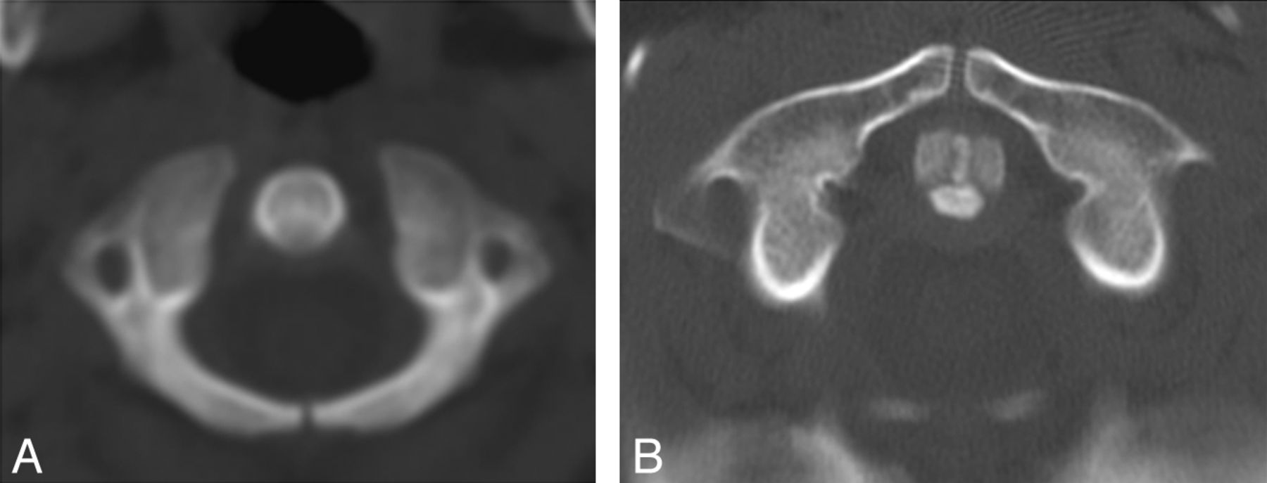 Normal Ossification Patterns of Atlas and Axis: A CT Study ...