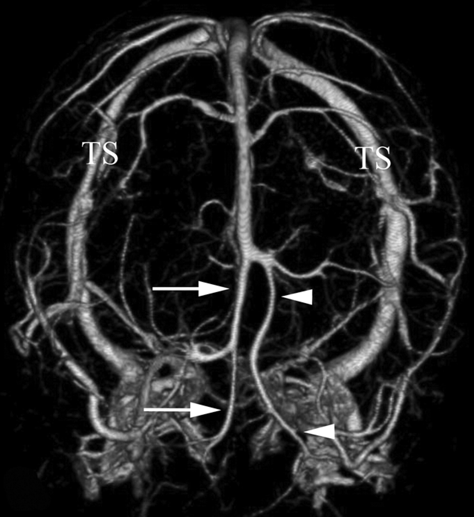 Unilateral Hypoplasia of the Rostral End of the Superior Sagittal ...
