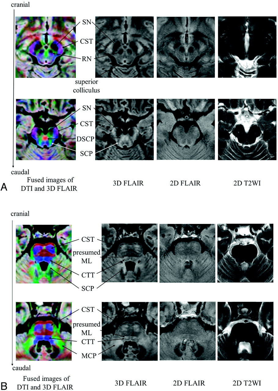 Comparison of 3D FLAIR, 2D FLAIR, and 2D T2-Weighted MR Imaging of ...