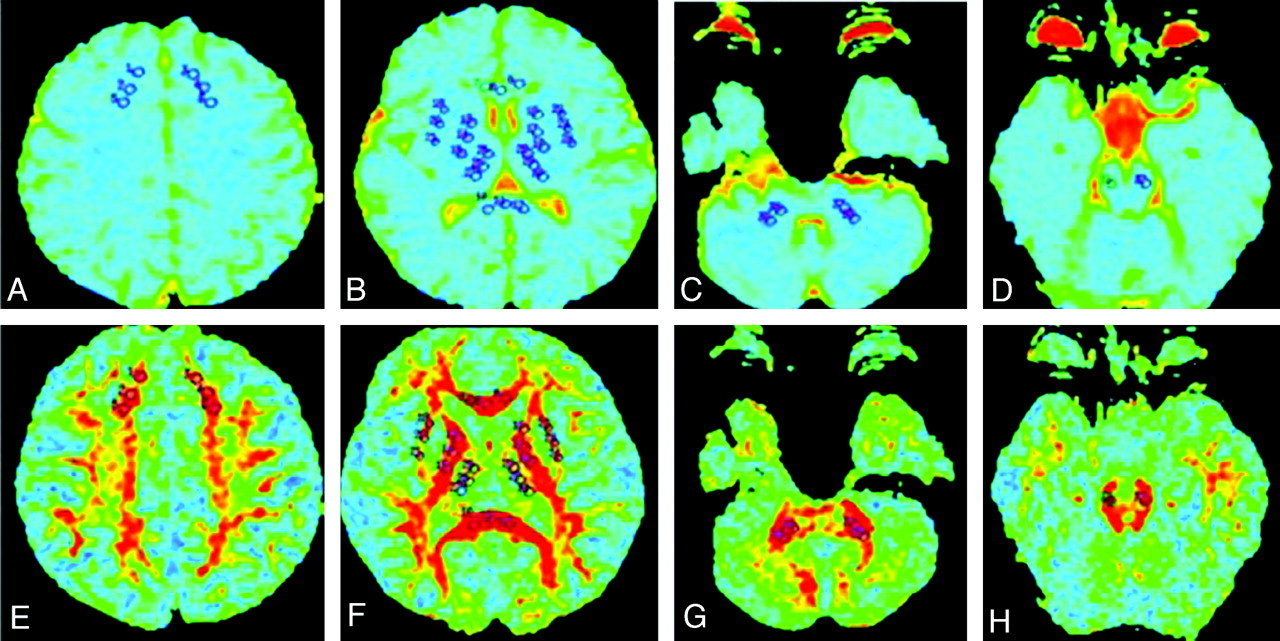 Acute effects of alcohol on the human brain diffusion tensor download figure ccuart Choice Image