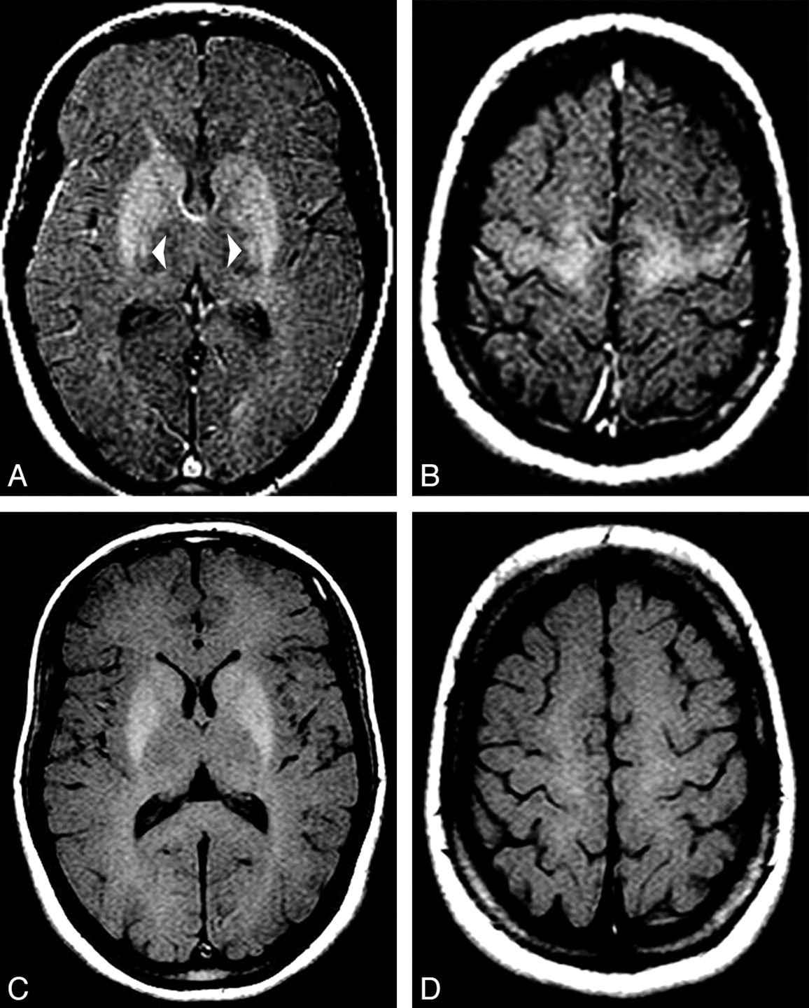 Corticospinal Tract MR Signal-Intensity Pseudonormalization