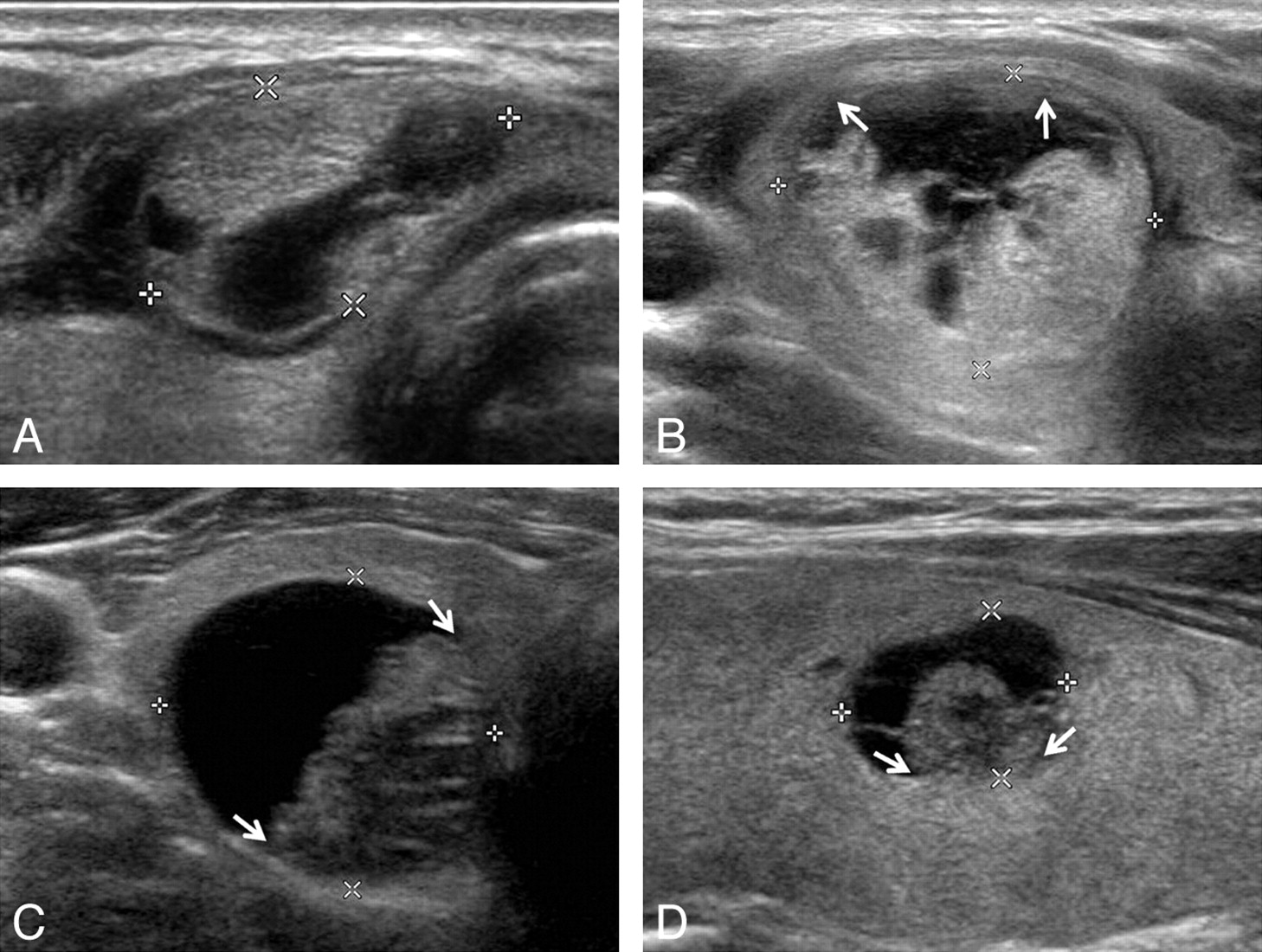 Ultrasound Based Diagnostic Classification For Solid And Partially