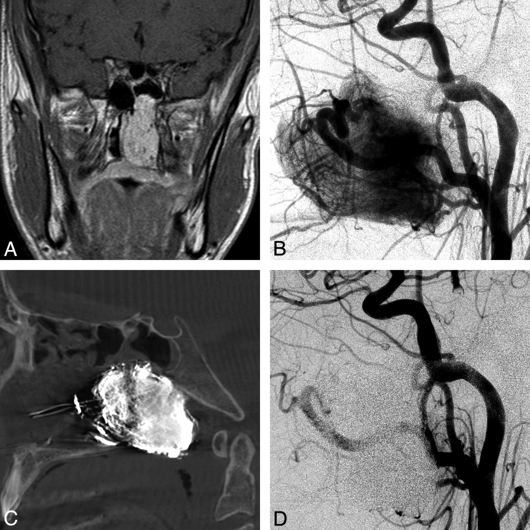 Preliminary Experience With The Percutaneous Embolization Of