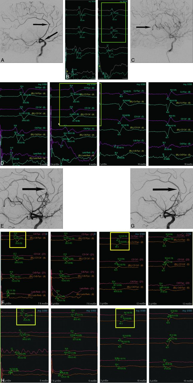 Feasibility and Efficacy of Transcranial Motor-Evoked Potential