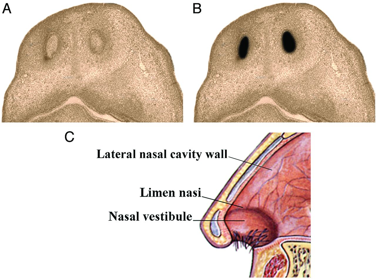 Illustrated Review Of The Embryology And Development Of The Facial