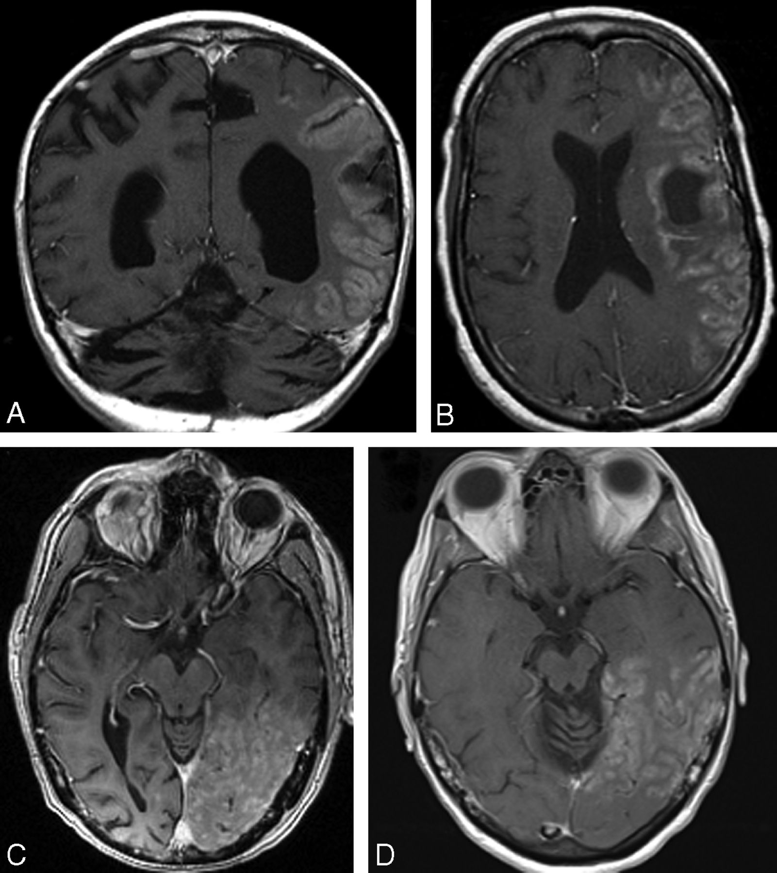 Stroke-Like Migraine Attacks after Radiation Therapy (SMART