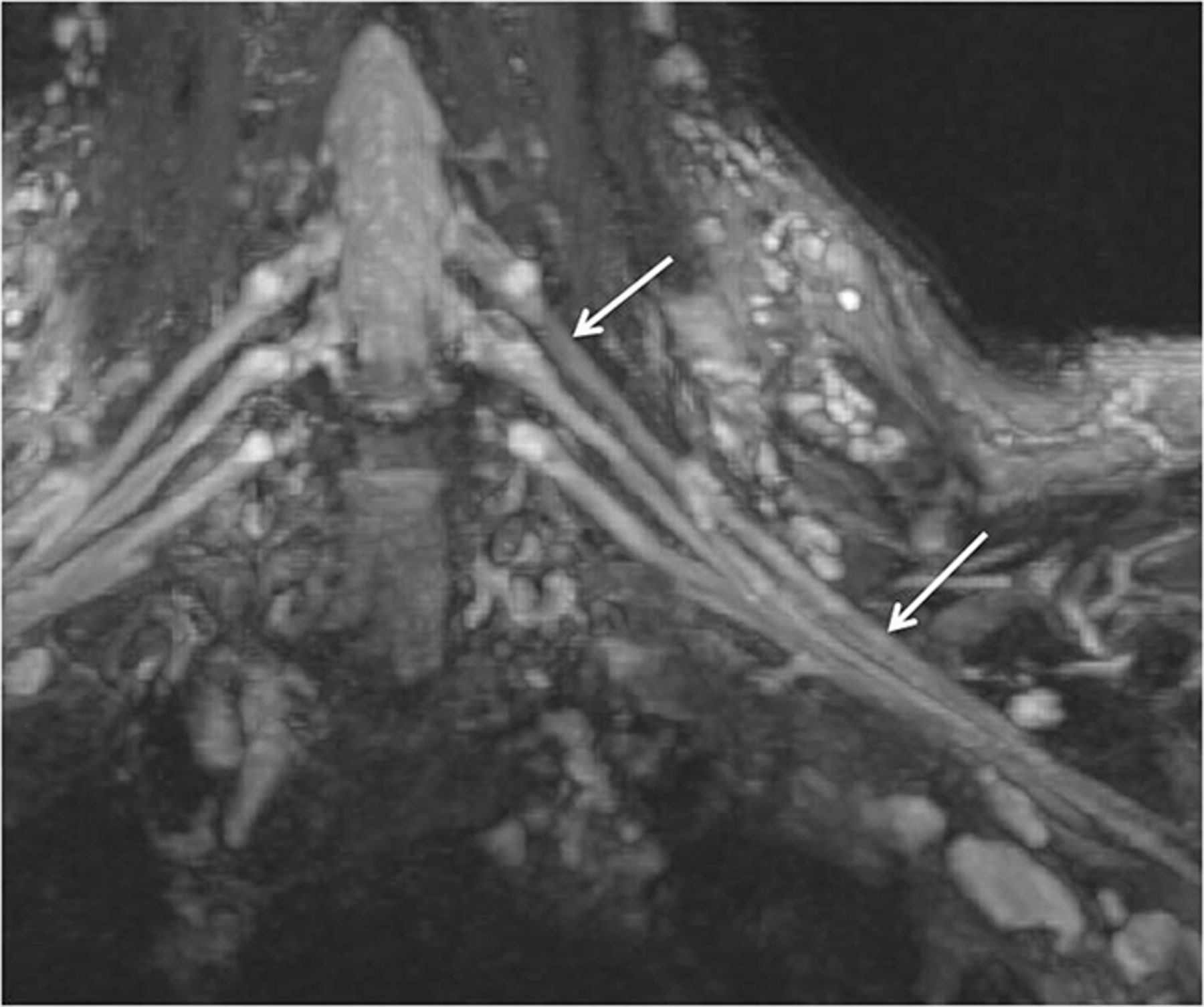 High-Resolution 3T MR Neurography of the Brachial Plexus and Its ...