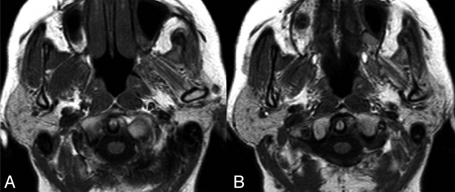 Parotid Gland Atrophy in Patients with Chronic Trigeminal Nerve ...