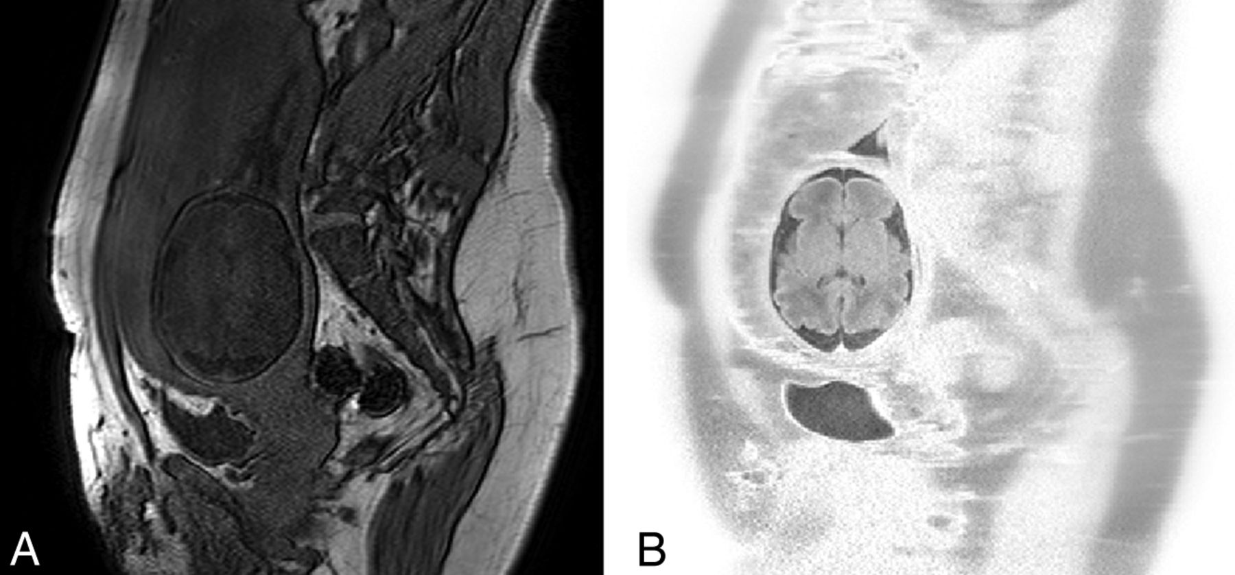 Motion-Compensation Techniques in Neonatal and Fetal MR Imaging