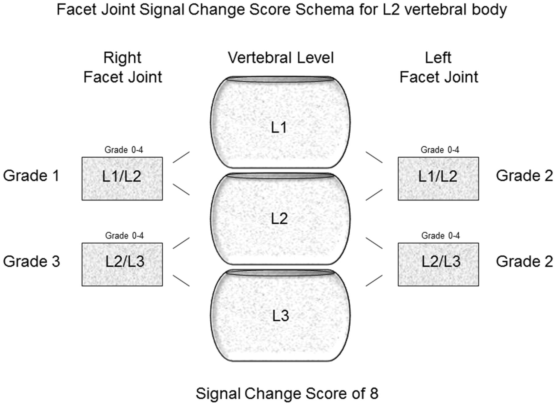 Facet Joint Signal Change On Mri At Levels Of Acutesubacute Lumbar