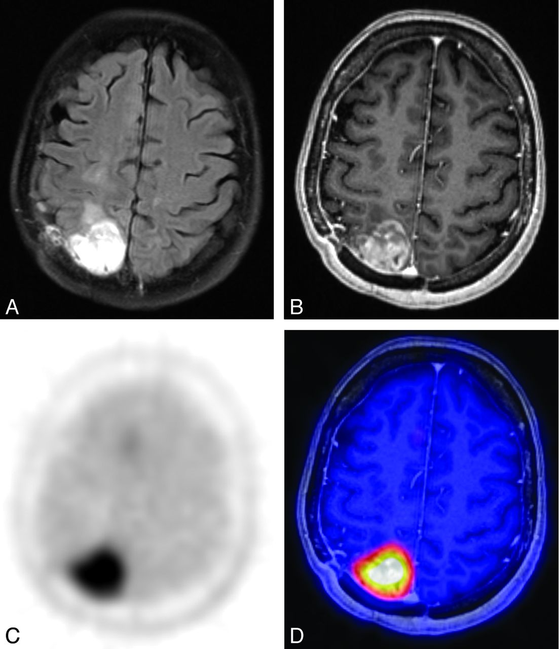 Prediction Of Glioma Recurrence Using Dynamic 18f Similar Results Simple Brain Diagram 505 Download Figure