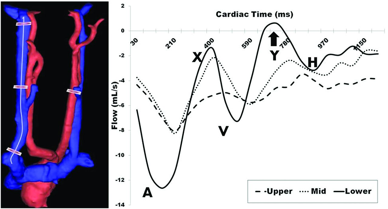 Reproducibility Of Cerebrospinal Venous Blood Flow And Vessel Diagram 88 The Internal Structure Through Heart Download Figure Open In New Tab