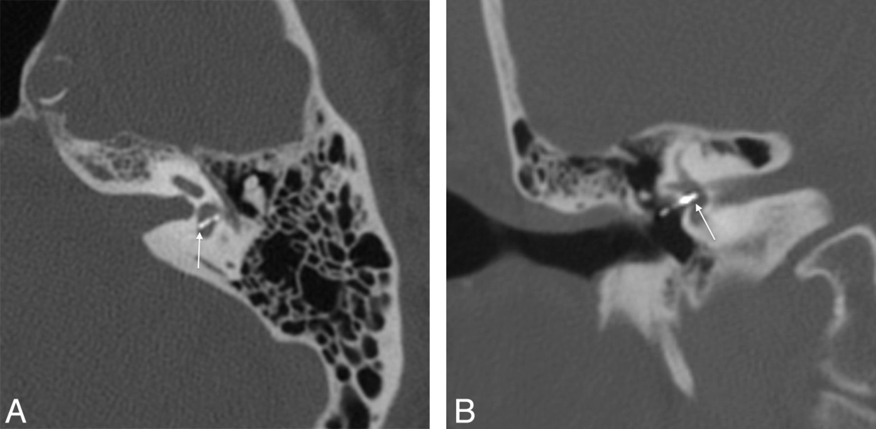 Surgical And Clinical Confirmation Of Temporal Bone Ct Findings In
