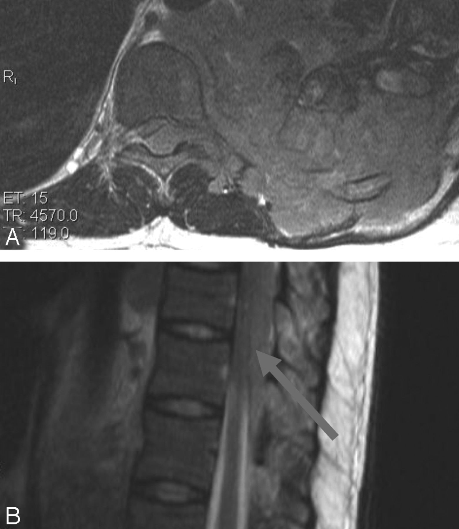 Acute Myelopathy or Cauda Equina Syndrome in HIV-Positive